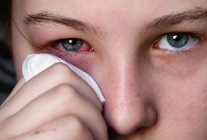 Pink Eye: Causes, Symptoms, Treatment and Prevention